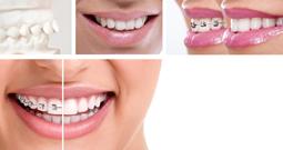 ortodonzia studio dentistico squassoni