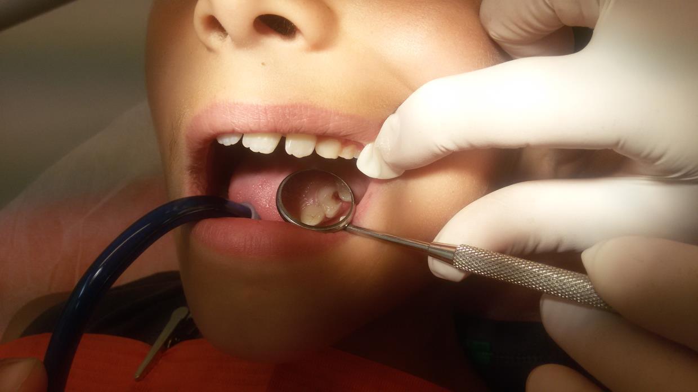 pedodonzia studio dentistico squassoni