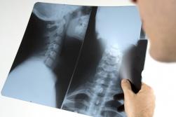 Riabilitazione Ortopedica Parma Fisioterapia Parma