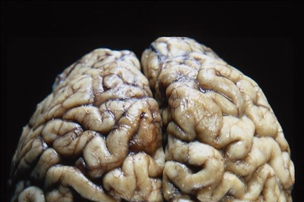 Psicoterapia Dr. Cannarozzo Trieste