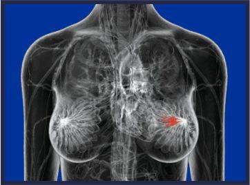 mammografia trapani