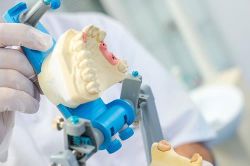protesi dentarie fisse e mobili caneva