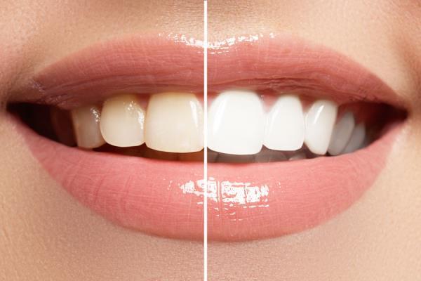 prevenzione dentale pordenone