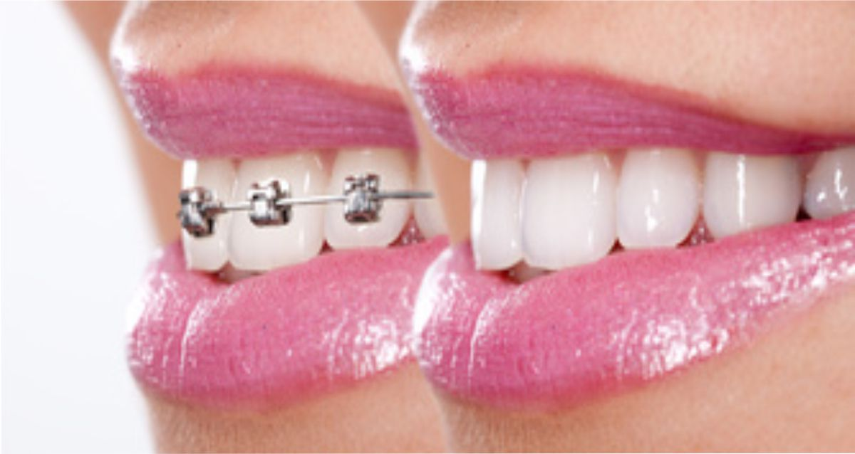 ortodonzia mazara del vallo marsala