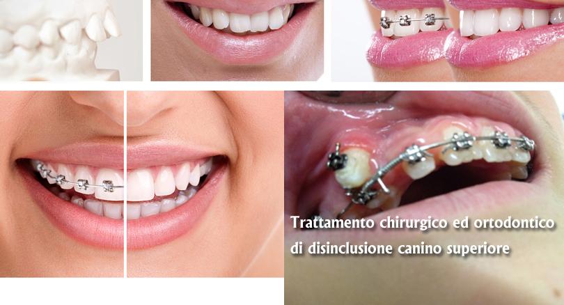 Ortodonzia Roma Eur