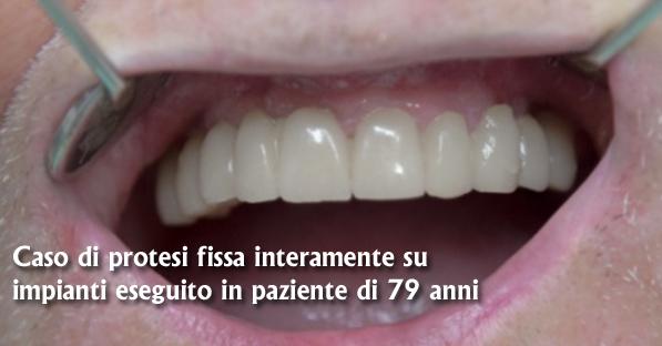 protesi dentista zona eur Roma