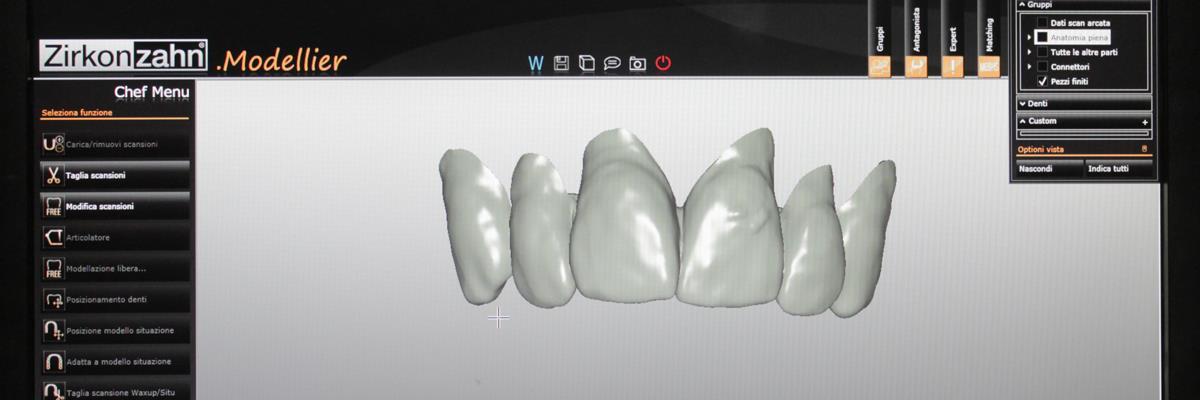 Protesi dentali La Spezia