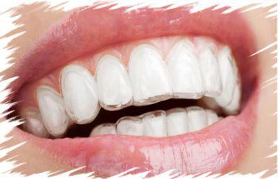 ortodonzia trapani