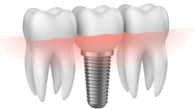 implantologia trapani