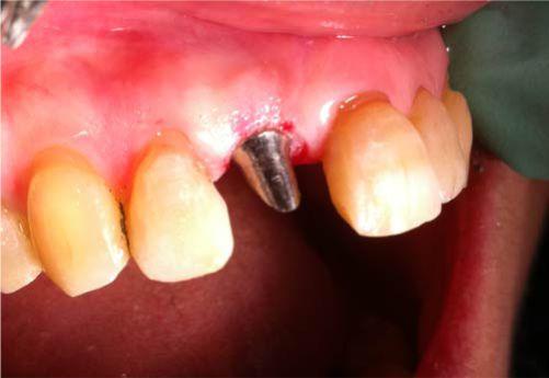 impianto endossei la clinica odontoiatrici trapani