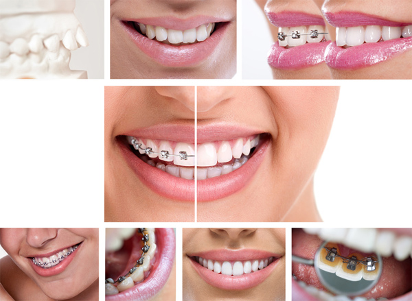Ortodonzia Terni
