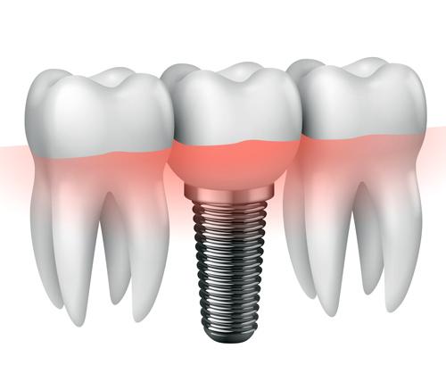 Implantologia Terni