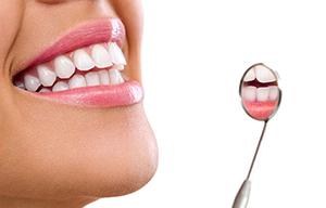 Igiene sbiancamento denti San Lorenzo Roma