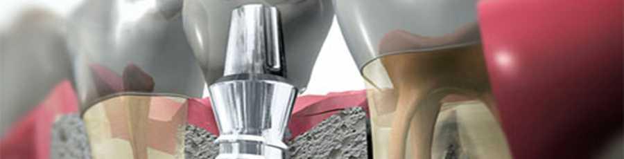 Protesi dentali Imperia | Protesi dentali Albenga Savona | Implantologia Imperia | Implantologia Albenga Savona | NARCO Imperia Albenga Savona