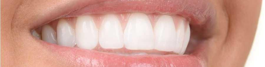 Estetica dentale Imperia | Estetica dentale Albenga (Savona) | NARCO