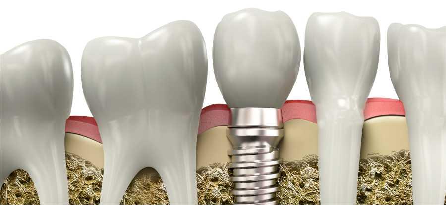 Implantologia Imperia | Implantologia Albenga Savona | Implantologia osteointegrata Imperia Albenga Savona | STUDIO DENTISTICO ODONTOIATRICO NARCO