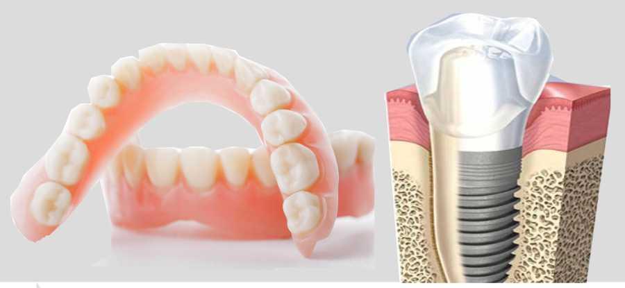 Protesti dentali Imperia Albenga Savona | protesi dentarie Imperia Albenga Savona | Implantologia Imperia Albenga Savona Implantologia osteointegrata | STUDIO DENTISTICO NARCO