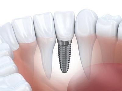 Sostituzione di elementi dentari