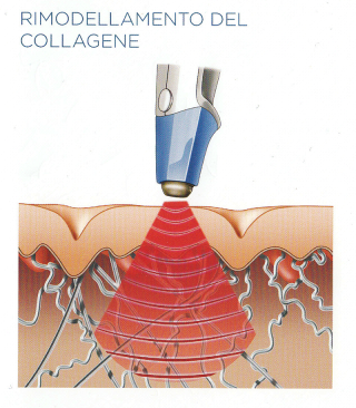 rimodellamento collagene