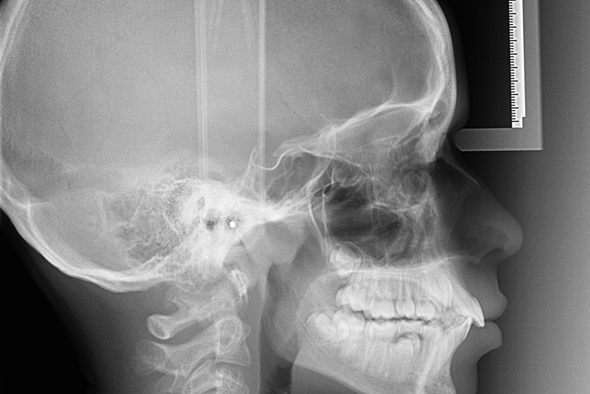 telecranio e ortopanoramica radiologica pavia Roma