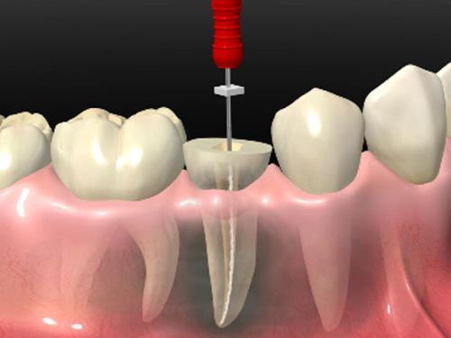 odontoiatrico marsciano