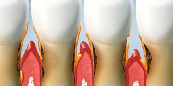 trattamenti   parodontologia
