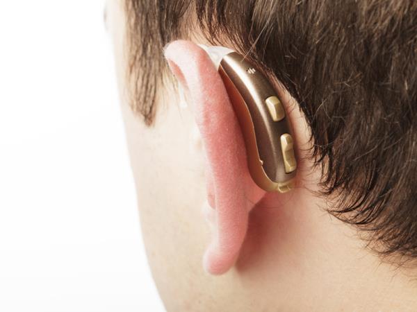 protesi acustiche Bergamo